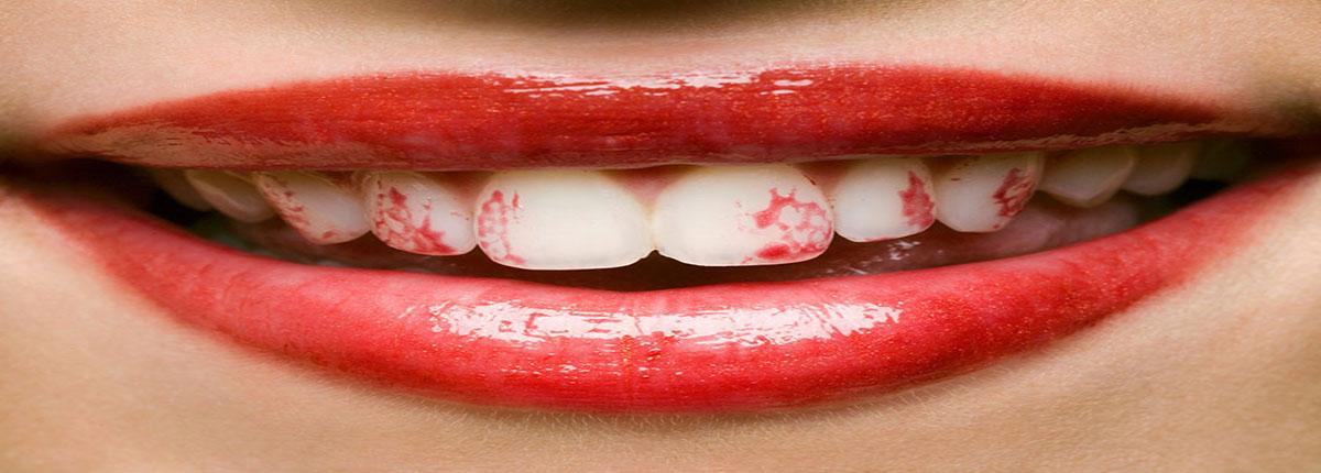 رژلب دندانپزشکی